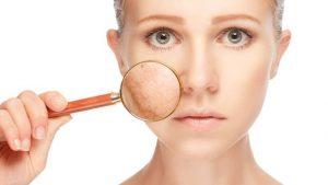 Eliminar manchas de la piel en forma natural